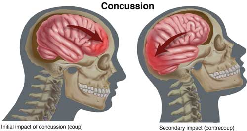 Concussion Illustration
