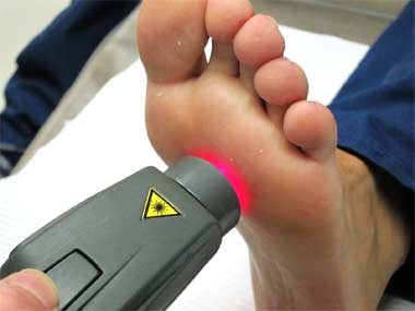 Laser Therapy on the Foot