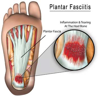 Cupping is the #1 treatment for Plantar Fasciitis
