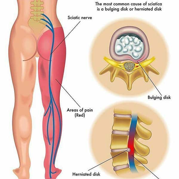 AM&WC offers a variety of treatment options for Sciatica