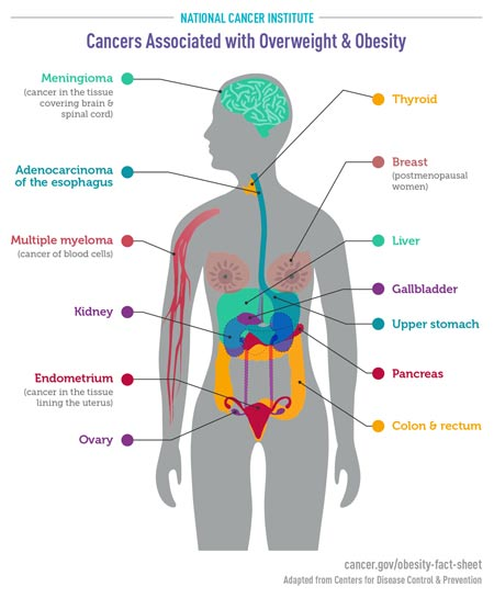 Cancers and Obesity Information